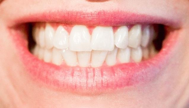 Jak mít krásné zuby? Pomůže Vám Oclean SE Sonic!